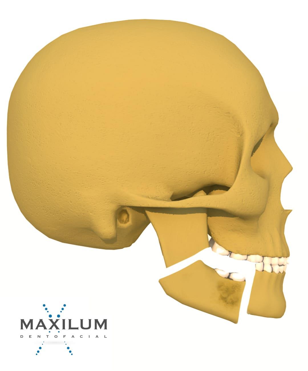cancer-mandibula-malaga