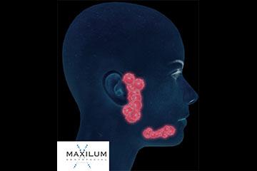 tratamiento-glandulas-salivales