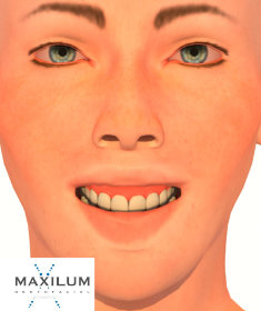 sonrisa-gingival-malaga