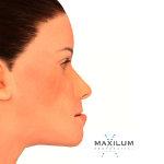 prognatismo-mandibular-malaga