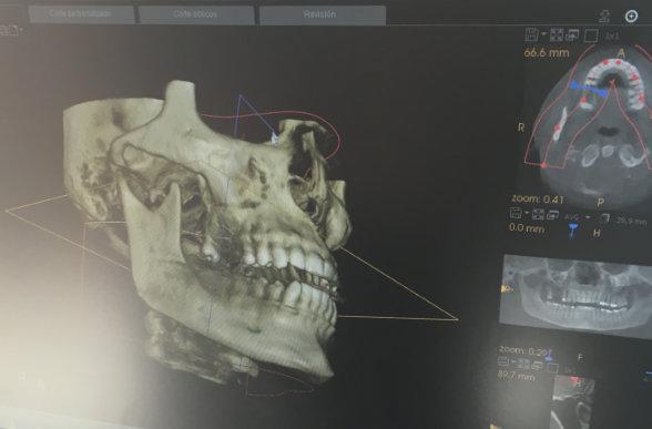 tech-maxilofacial